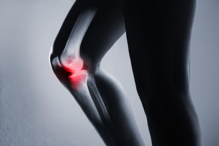 Menschliches Kniegelenk und Bein im Röntgenstrahl, auf grauem Hintergrund. Das Kniegelenk ist rot hervorgehoben.