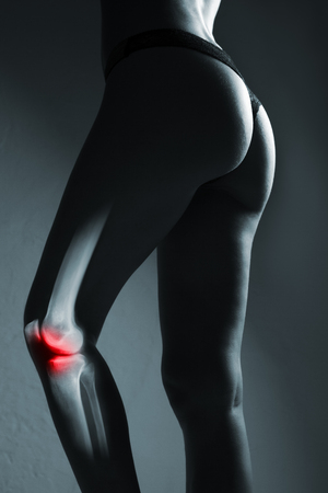 Human knee joint and leg in x-ray, on gray background