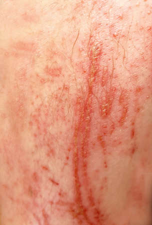 Closeup of bloody big scrapes and wounds on the human skin.