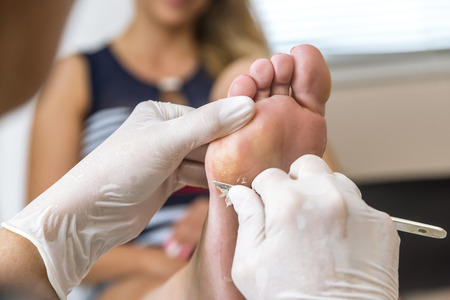 Chiropodist removes skin on a wart with a scalpel on the sole of Foot of a woman Banque d'images