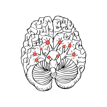 두개골 신경