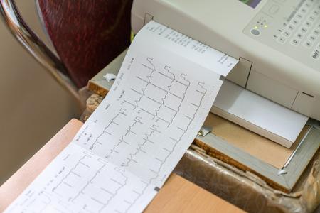 Drukowanie raportu kardiogramu wychodzącego z elektrokardiografu na oddziale porodowym
