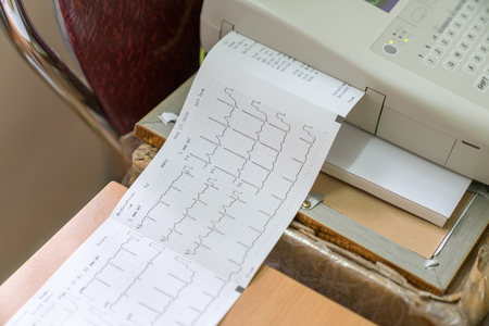 Printing of cardiogram report coming out from Electrocardiograph in labour ward Imagens