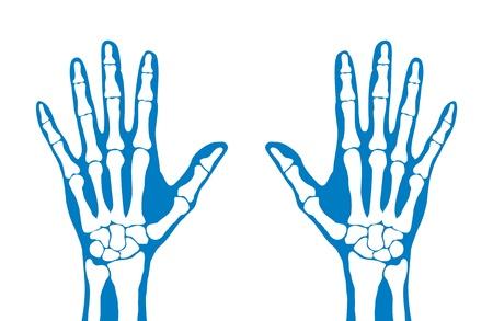 Radiology, X-ray, hands Stock Photo - 9826472