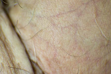 scrotum: Detail of human skin, scrotum