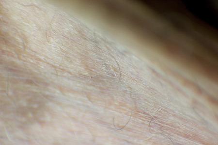 scrotum: Detalle de la piel humana, el escroto Foto de archivo