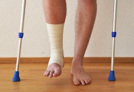 jambe cass�e: Panser sur la jambe  Banque d'images