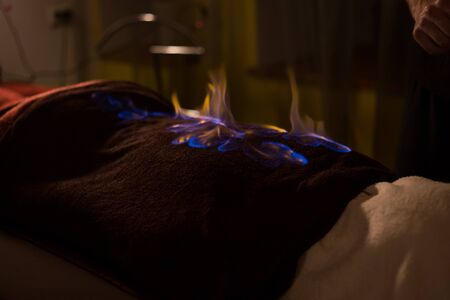 Chinese fire massage - Huo Liao therapy. Traditional chinese medicine, fire treatment and bodycare concept Foto de archivo