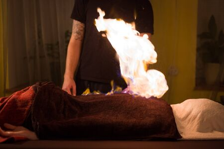Chinese fire massage - Huo Liao therapy. Traditional chinese medicine, fire treatment and bodycare concept Reklamní fotografie
