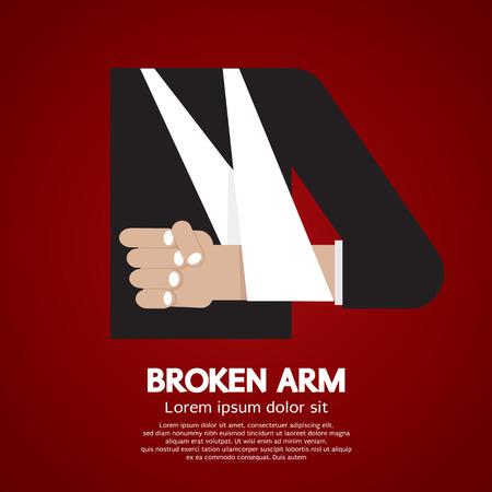 fractura: Broken Arm Ilustración vectorial