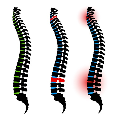 chest pain: human spine silhouettes