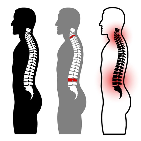neck injury: human spine silhouettes