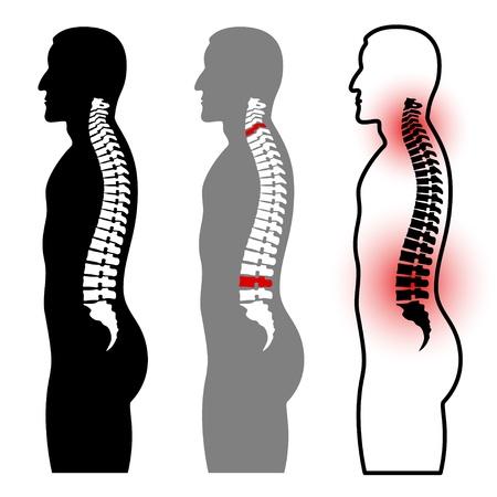 cervicales: siluetas humanas columna Vectores