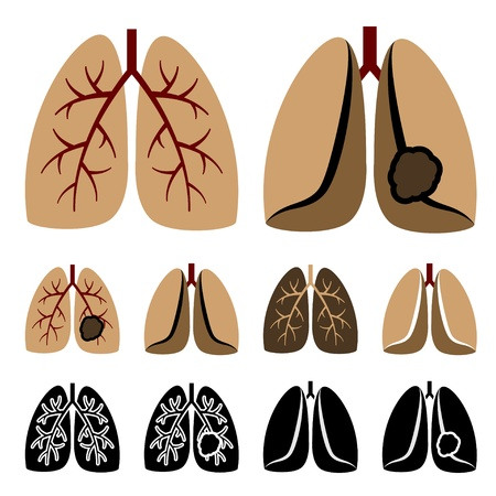 breathing: vector human lung cancer icons
