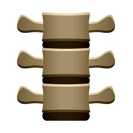 degenerative: vector human spine vertebrae front view