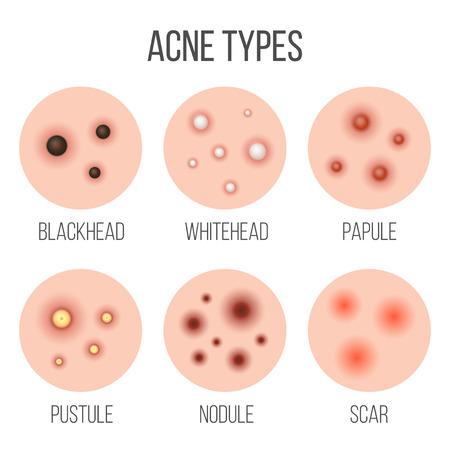Creatieve vector illustratie soorten acne, puistjes, huidporiën, mee-eter, whitehead, litteken, comedo, stadia diagram geïsoleerd op transparante achtergrond. Kunst ontwerp . Abstract begrip grafisch element.