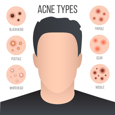 Creative vector illustration types of acne, pimples, skin pores, blackhead, whitehead, scar, comedone, stages diagram isolated on transparent background. Art design . Abstract concept graphic element. Illustration