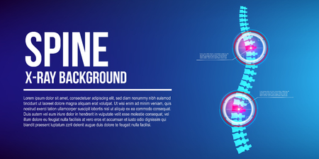 Creative vector illustration of spine x-ray, pain neck, disk degradation, injury treatment on background. Art design medical banner template. Abstract concept healthcare infographic graphic element.