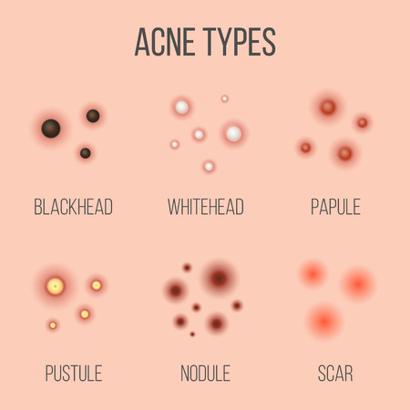 Creative vector illustration types of acne, pimples, skin pores, blackhead, whitehead, scar, comedone, stages diagram isolated on transparent background. Art design . Abstract concept graphic element. Stock Vector - 124954848