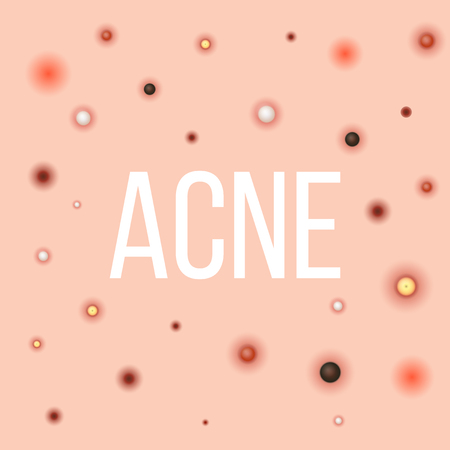 Creative vector illustration types of acne, pimples, skin pores, blackhead, whitehead, scar, comedone, stages diagram isolated on transparent background. Art design . Abstract concept graphic element. Ilustração