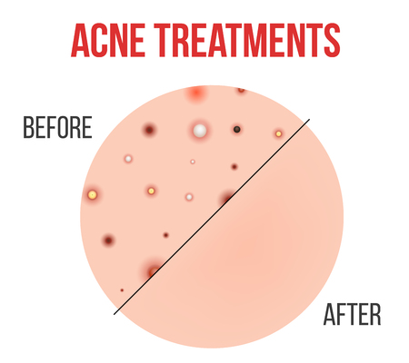 Creative illustration types of acne, pimples, skin pores, blackhead, whitehead, scar, comedone, stages diagram isolated on background. Art design . Abstract concept graphic element.