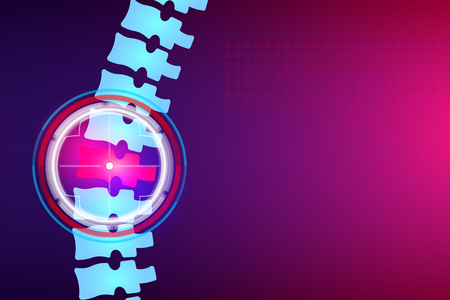 Illustrazione creativa di raggi X della colonna vertebrale, dolore al collo, degradazione del disco, trattamento delle lesioni sullo sfondo. Modello di banner medico di design artistico. Elemento grafico infographic di sanità di concetto astratto. Archivio Fotografico