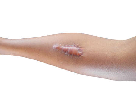 Keloid scars on the skin of the arms High pressure scars require laser treatment and surgery to remove scars at a skin care beauty clinic. Scars from healing tissues, injuries from physical accidents.