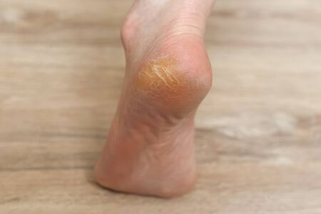 clavus and cracks on the heel of female foot close-up 写真素材
