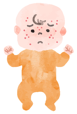 Baby with a rash Illustration
