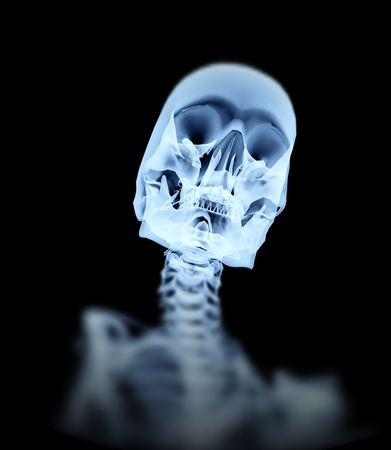 An image of an xray of a skeleton, a good  or possible medical based image. Stock Photo - 1886648