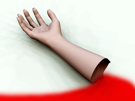 disembodied: A bloody decapitated arm for Halloween and medical concepts.