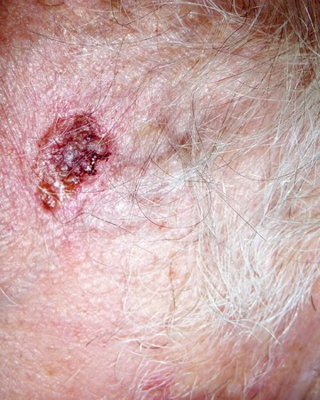 scab: A scab on hairy human flesh.
