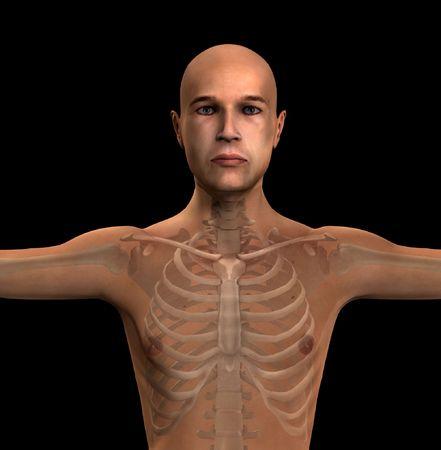 X Ray of a mans torso region. Stock Photo - 5811193