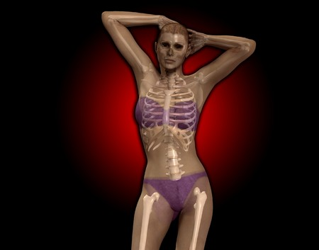 gory: An x ray image of a women in a pose.