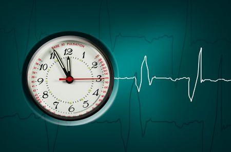 tachycardia: pulsaci�n reloj muestra la hora - de cinco a doce Foto de archivo
