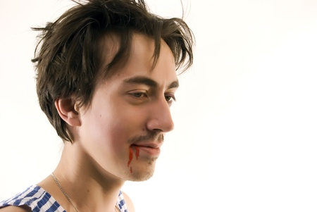 young man with his mouth bleeding Stock Photo - 8270222