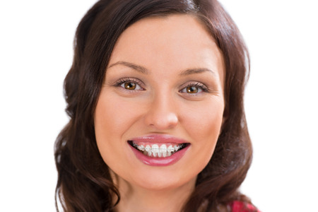 Closeup portrait of charming woman wearing orthodontic ceramic white brackets looking at camera and smiling Stock Photo
