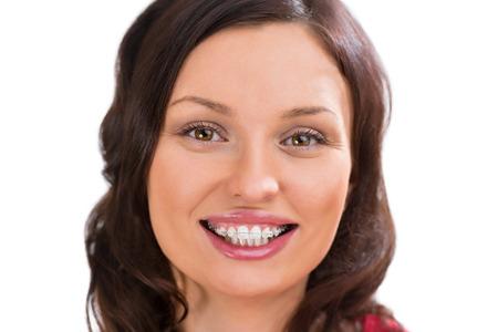 ceramics: Closeup ritratto di affascinante donna che indossa ortodontici staffe di ceramica bianca guardando la fotocamera e sorridente