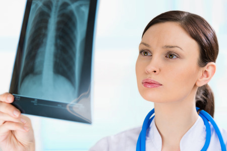 torax: Female doctor looking at a lungs or torso xray, fluorography