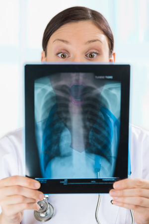 torax: Surprised and very excited female doctor looking at a lungs or torso xray, fluorography