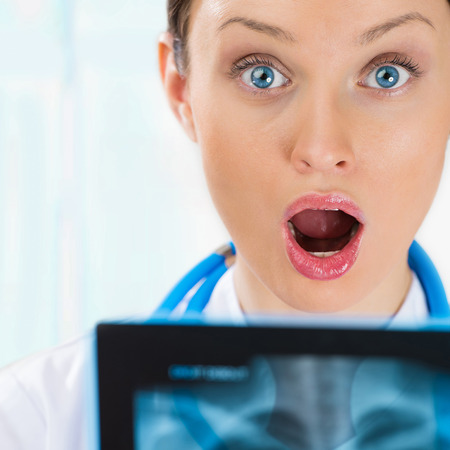 Surprised and very excited female doctor looking at a lungs or torso xray, fluorography photo