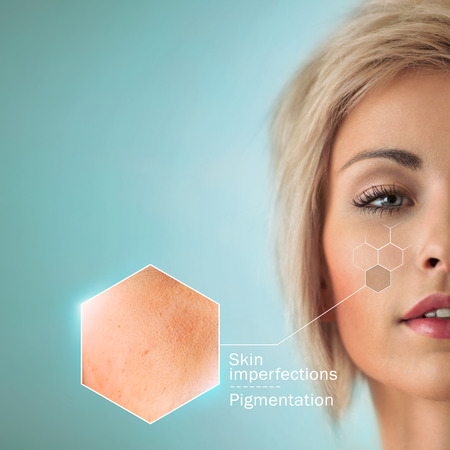 aging face: Bright closeup portrait of beautiful woman with skin crops. Skincare concept