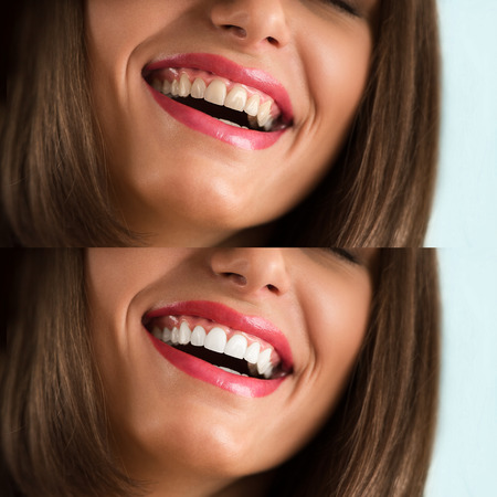 yellow teeth: Whitening - bleaching treatment, before and after, woman teeth and smile, closeup portrait Stock Photo