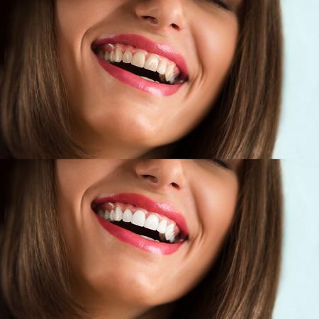 Whitening - bleken de behandeling, voor en na, vrouw tanden en glimlach, close-up portret