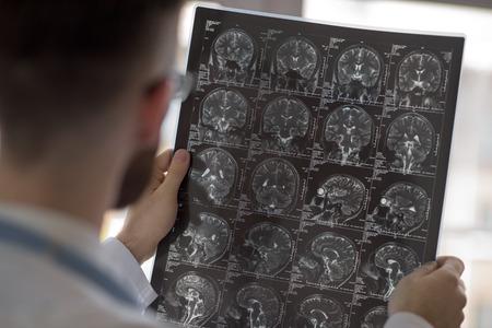 Close-up portret van de intellectuele man medisch personeel met witte labcoat, kijken hersenen x-ray beeld op radiografische, CT-scan, MRI, kliniek kantoor achtergrond. Afdeling radiologie