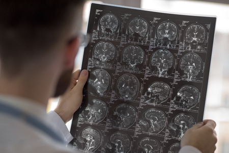 image: Closeup portrait of intellectual man healthcare personnel with white labcoat, looking at brain x-ray radiographic image, ct scan, mri, clinic office background. Radiology department
