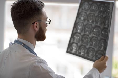 Portret z bliska, intelektualnych pracowników służby zdrowia człowieka z białym labcoat, patrząc na mózgu x-ray radiologicznych obrazu, tomografii komputerowej, rezonansu magnetycznego, klinice biurze tle. Dział Radiologia