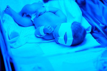 neonate: Two days old newborn baby having photo theraphy under blue UV light