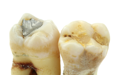 Extracted teeth with details of caries, fillings and tartar,
