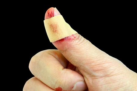 Bandage on thumb